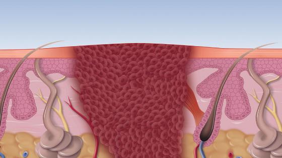 Swift Verruca Treatment Explained