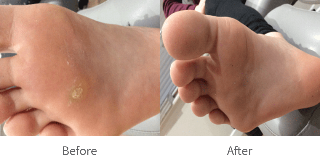 Verrucas - Symptoms & Treatment | Hatt Health & Movement Clinic